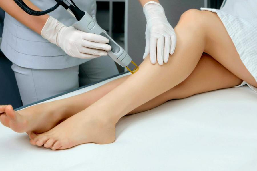 Can You Shave Before or After Laser Hair Removal? 2